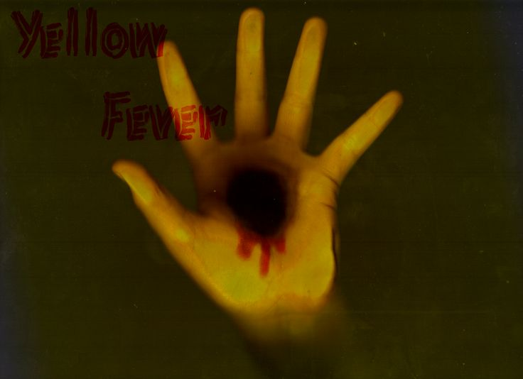 How to Recognize Yellow Fever