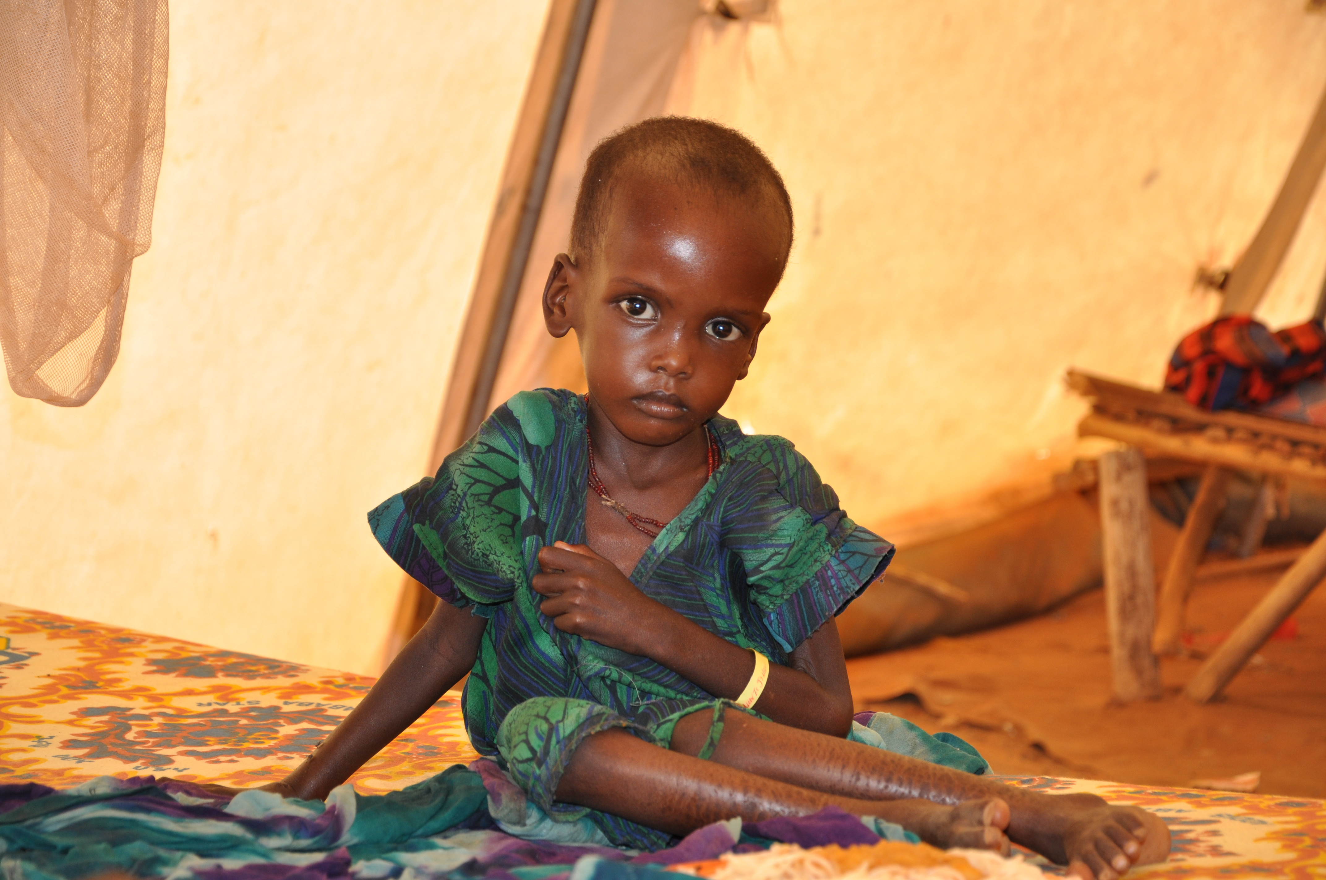 Violence is exacerbating malnutrition in Mali – UNICEF