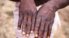 Monkeypox: 11 persons placed under surveillance in Bayelsa