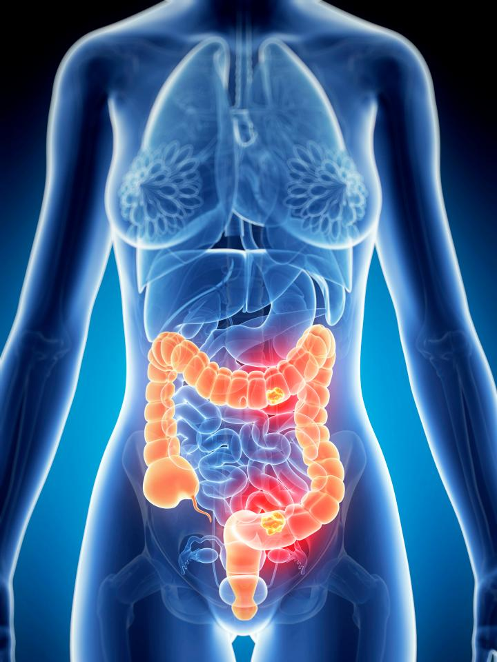 How to cut your risk of bowel cancer