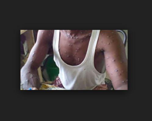 UBTH: Benin records a monkeypox case