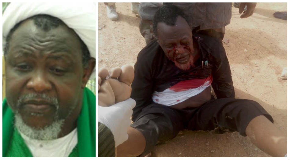 """I am alive and getting better, thanks to all your prayers"" – Sheikh El-Zakzaky"
