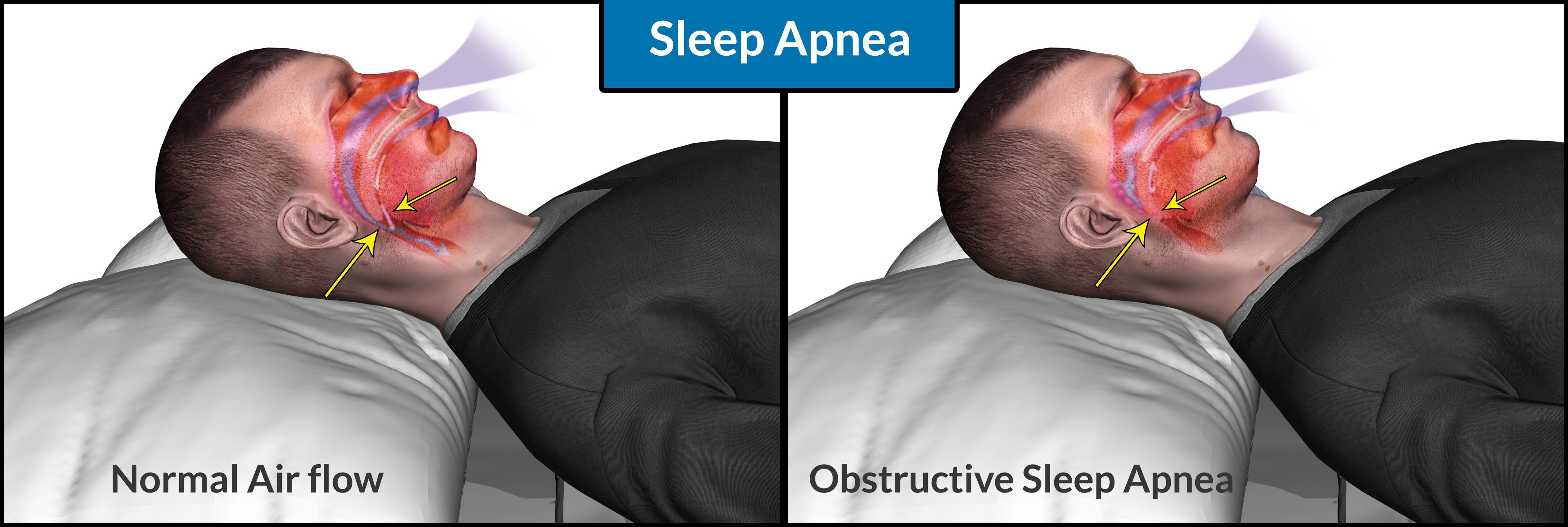 Sleep apnea patients may not always need specialists