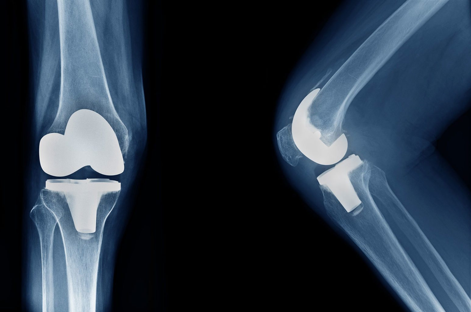Knee osteoarthritis: Blacks in U.S. lose quality of life due knee replacements