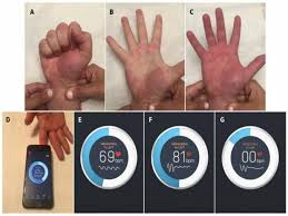 Smartphone app might offer new way to measure blood flow – Research