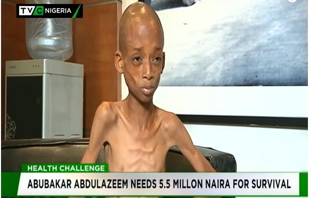 Corrosive Esophageal: Abubakar Abdulazeem needs N5.5m for survival