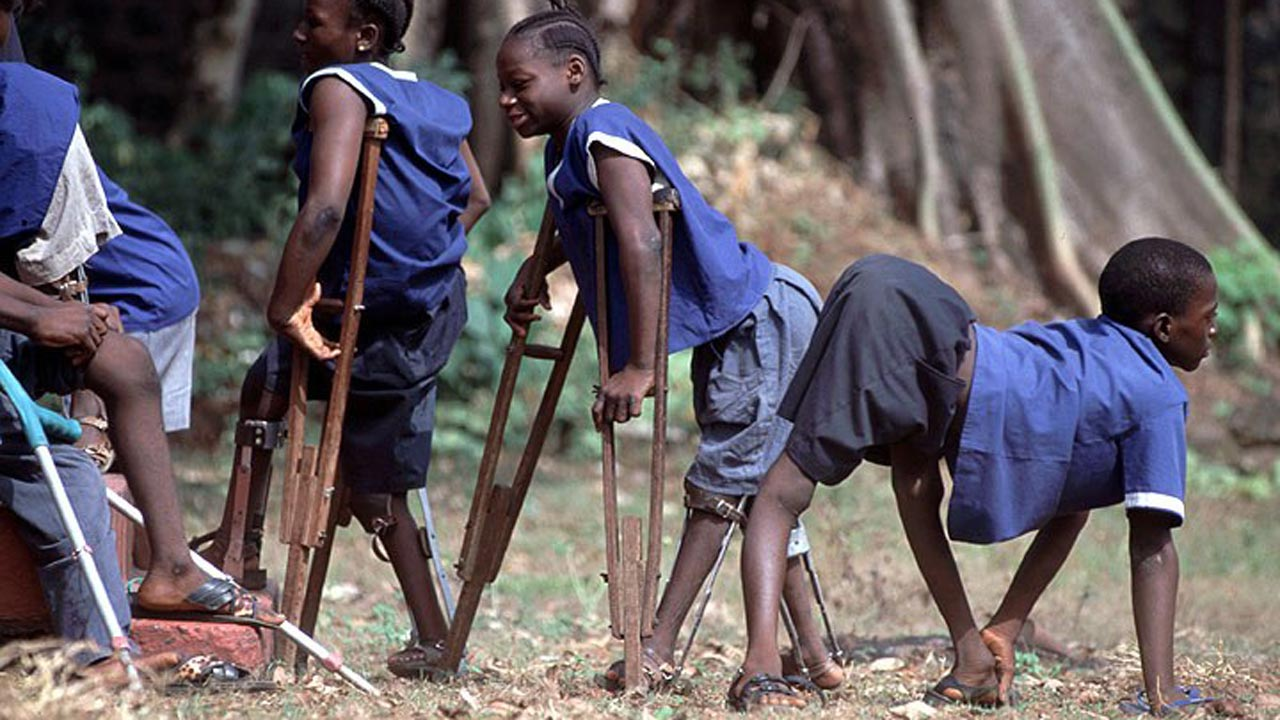 FG committed to total eradication of polio in Nigeria