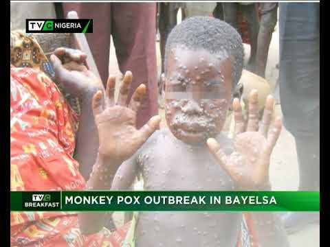 TVC Breakfast 6th October 2017   Monkey Pox Outbreak in Bayelsa