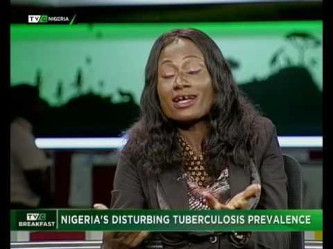 TVC Breakfast July 2017    Nigeria's Disturbing Tuberculosis Prevalence