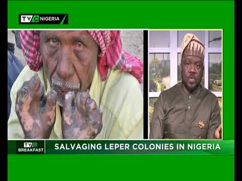 TVC Breakfast Show 28th Jan., 2019 Salvaging Leprosy in Nigeria