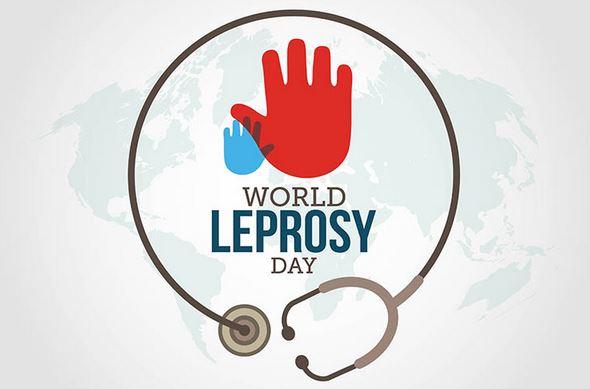 World Leprosy Day 2019: 'Ending discrimination, stigma and prejudice'